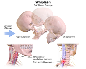 Whiplash soft tissue injury