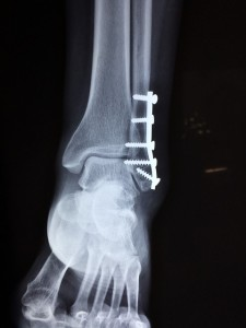 fractured ankle injury claim