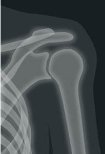 x-ray_clavicle